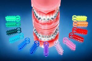 ยางจัดฟันมีกี่แบบ