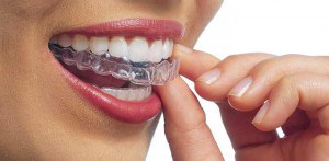 การจัดฟันแบบใส ราคาเท่าไหร่ ทำที่ไหนดี