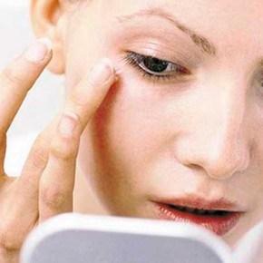 ถุงใต้ตาเกิดจากอะไร มีวิธีการรักษาถุงใต้ตาบวมยังไงบ้าง