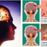 โรคความจำเสื่อม สาเหตุ การรักษา