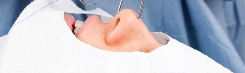 ศัลยกรรมเสริมดั้ง ทำจมูก ดั้งโด่ง ตัดปีกจมูก
