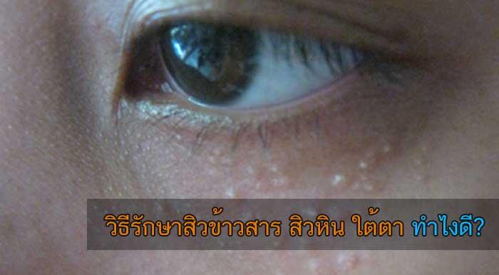 วิธีรักษาสิวข้าวสาร สิวหิน ใต้ตา ทำไงดี