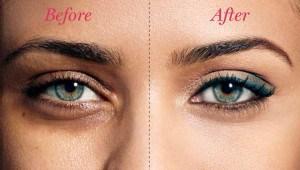 ศัลยกรรมถุงใต้ตา แก้ปัญหาถุงใต้ตาบวมคล้ำ