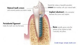 Dental-Implants ฟันปลอมแบบรากฟันเทียม