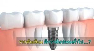 implant รากฟันเทียม ราคา ที่ไหนดี