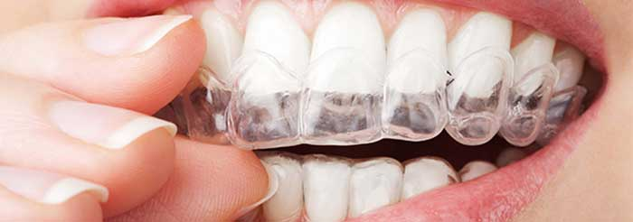 ฟันยาง กัดฟัน จัดฟัน