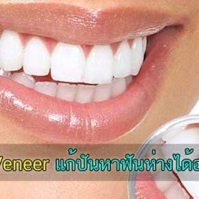 ฟันแตก ฟันห่าง ฟันเหลือง แก้ปัญหาง่ายๆด้วยการทำวีเนียร์ Veneer