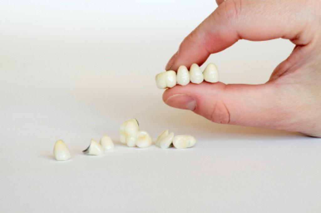โรคฟันผุ เกิดจาก