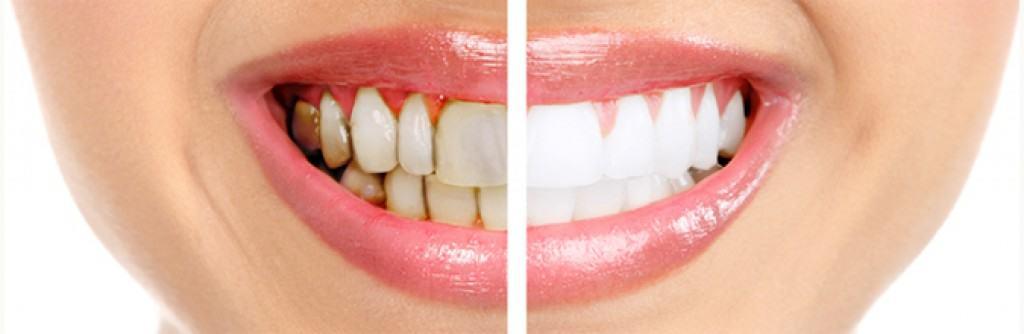 การ รักษา โรค ฟัน ผุ
