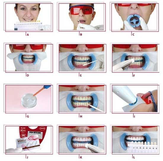 ฟอกฟันขาวเลเซอร์ Zoom ฟอกสีฟันเหลือง แก้ปัญหาของสีฟันให้ขาวได้ง่ายๆ