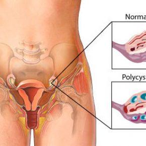โรค pcos กับการตั้งครรภ์