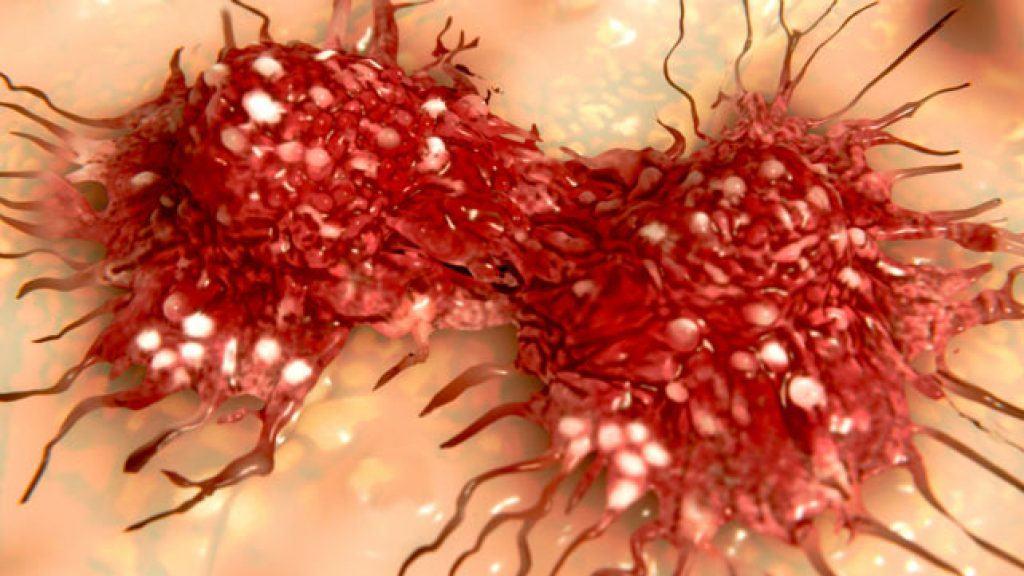 มะเร็งระบบสืบพันธุ์ เพศหญิง