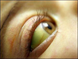 อาการตาเหลือง อ่อนเพลีย