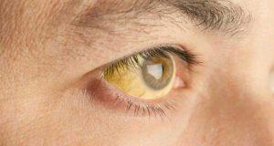 ตาเหลือง ดีซ่าน