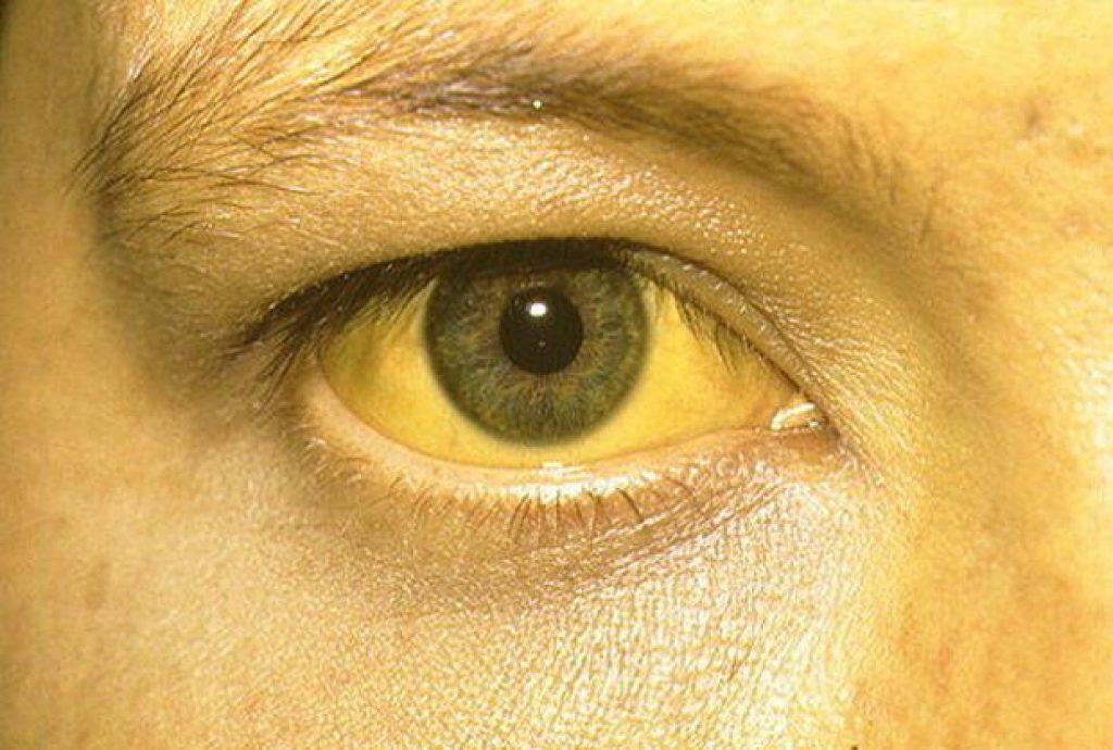 ตาเหลือง ตัวเหลือง เป็นโรคอะไร