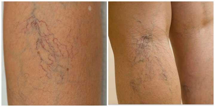 deep vein thrombosis โรคหลอดเลือดดำชั้นลึกอุดตัน