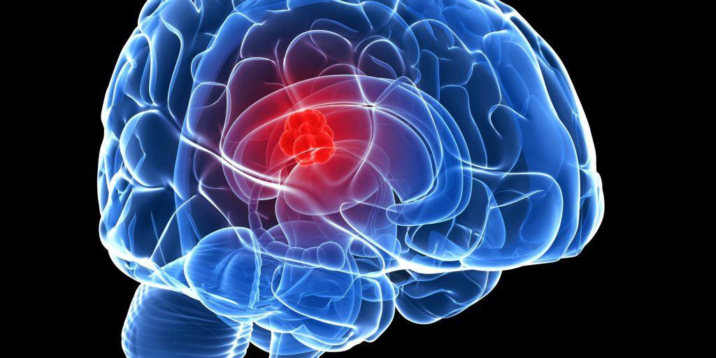 มะเร็งสมองเกิดจากอะไร