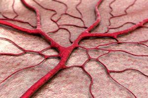โรคเยื่อบุโพรงมดลูกเจริญผิดที่ (Endometriosis)