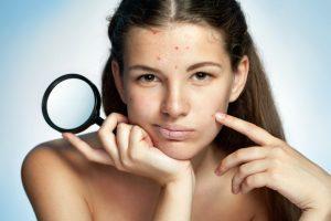 acne-sm