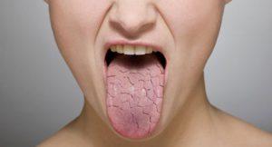 อาการปากแห้งคอแห้ง
