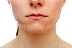 what-causes-cystic-acne