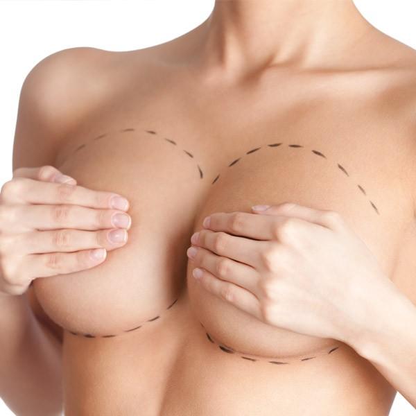 10 วิธีดูแลตัวเองอย่างถูกต้อง หลังทำศัลยกรรมเสริมหน้าอก 1
