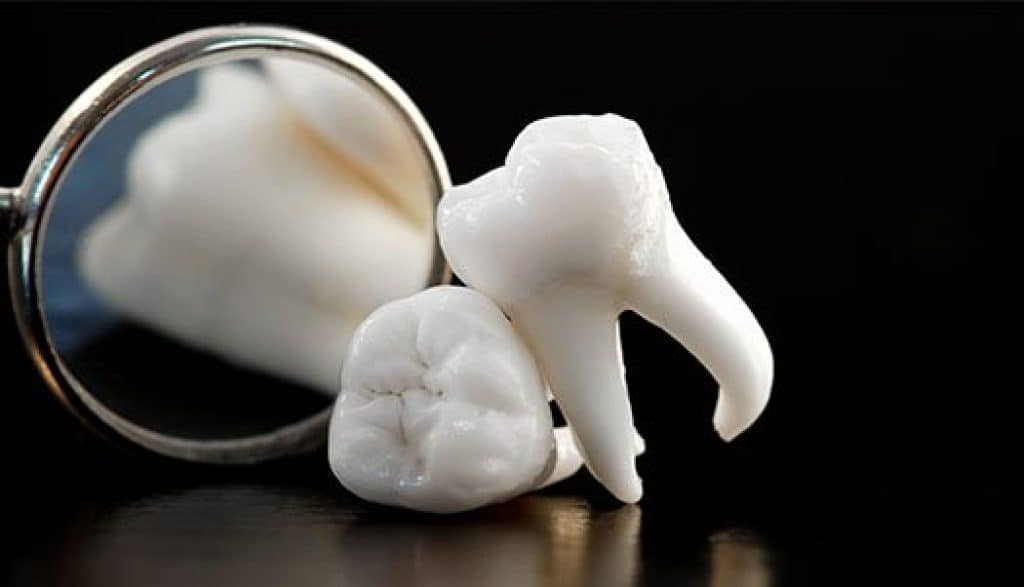ฟันคุด