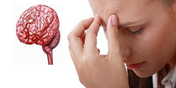 โรคหลอดเลือดสมอง อาการ