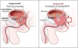 prostate gland1