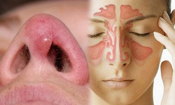 อาการ โรคริดสีดวงจมูก เกิดจาก เนื้องอกในจมูก