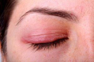 เปลือกตาบวม อักเสบ โรคเกี่ยวกับดวงตาที่น่ากลัวกว่าที่คิด 1