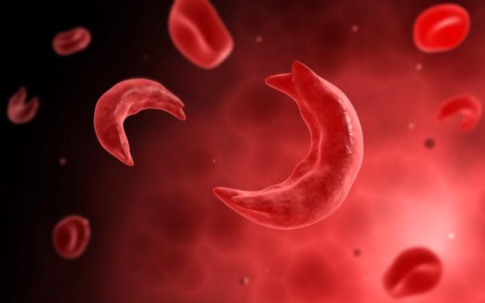 เม็ดเลือดแดงรูปเคียว