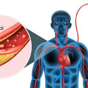 ไขมันในเลือดสูง-บริจาคเลือดได้หรือไม่