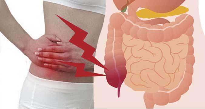 สาเหตุ อาการโรคไส้ติ่งอักเสบ การรักษา