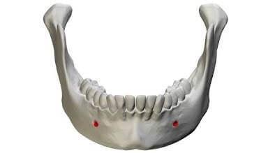 ฟิลเลอร์คาง-mental-foramen-1