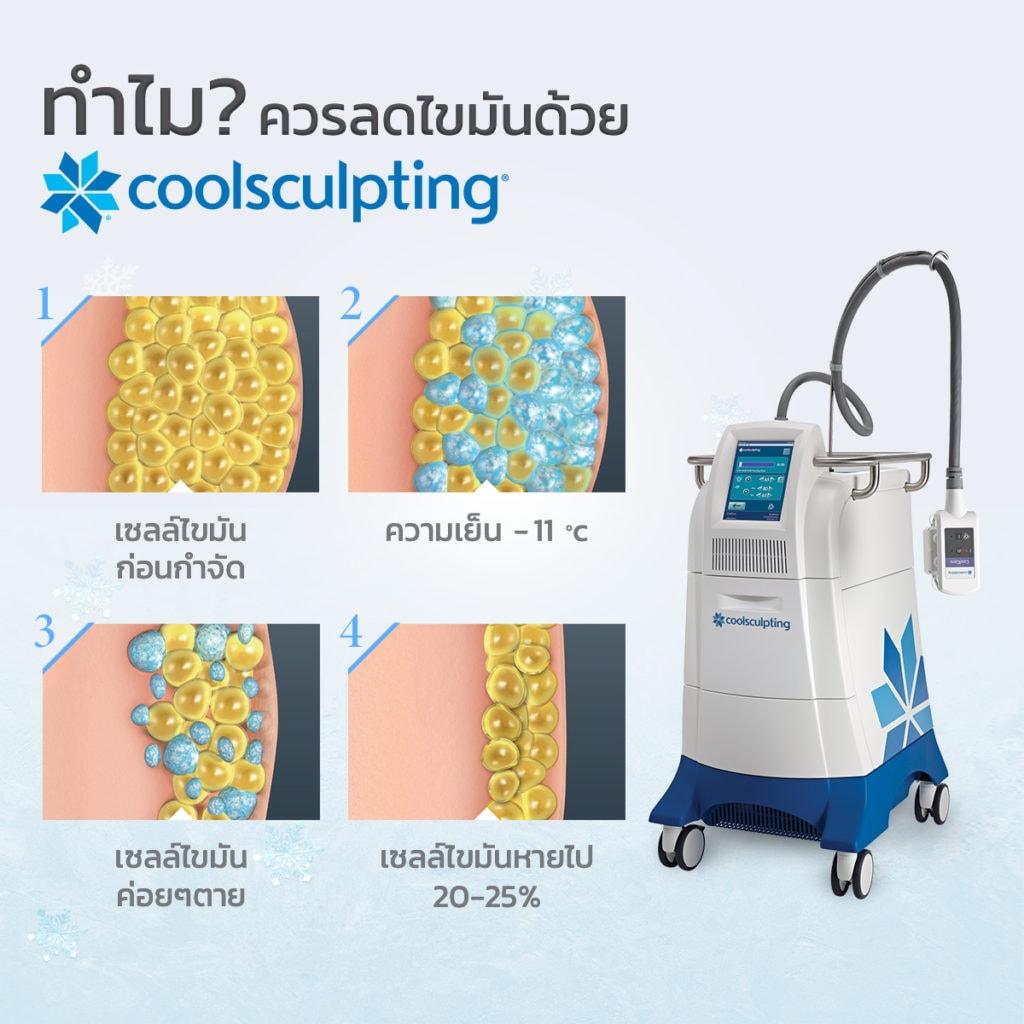 Coolsculpting ราคา – ทำไมควรลดไขมันด้วยความเย็น