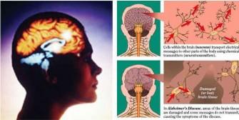 อัลไซเมอร์ โรคจากความผิดปกติของเซลล์สมอง