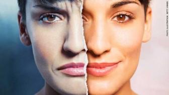 ไบโพลาร์ โรค 2 อารมณ์ คืออะไร เกิดจากอะไร?